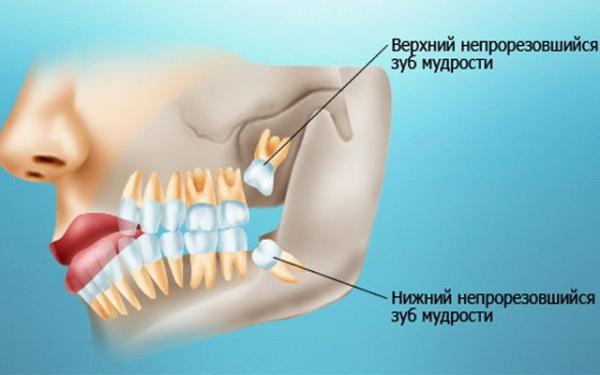 Почему идут зубы мудрости